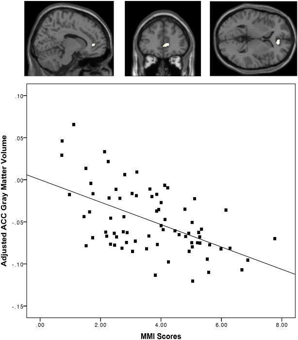 Image by Loh KK, Kanai R (2014) Higher Media Multi-Tasking Activity Is Associated with Smaller Gray-Matter Density in the Anterior Cingulate Cortex. PLoS ONE 9(9): e106698. doi:10.1371/journal.pone.0106698