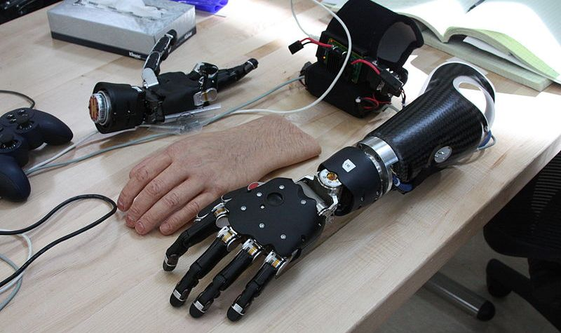 By Official Navy Page from United States of America Sarah Fortney/U.S. Navy (The Modular Prosthetic Limb (MPL).) [Public domain], via Wikimedia Commons