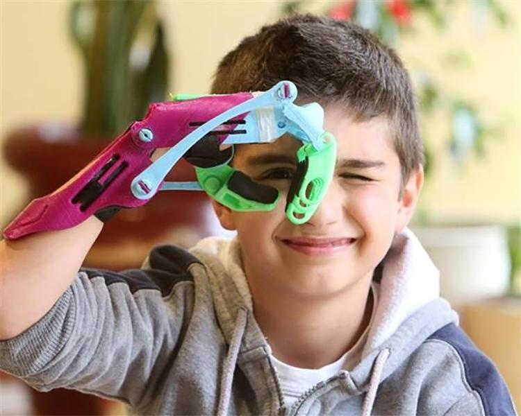 3D Prosthesis