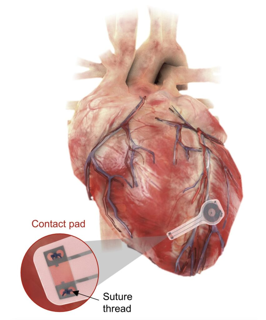 Biodegradable Wireless Transient Pacemaker